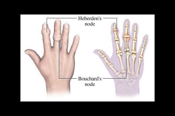 artrose knobbels