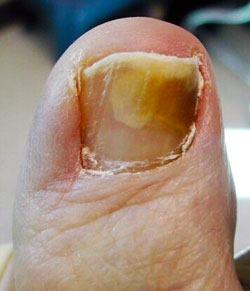 """""""fungus nail"""""""